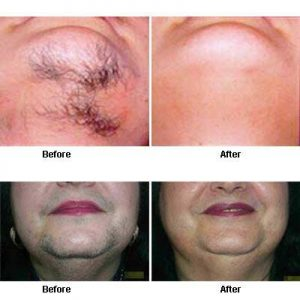 PCOS Hair Removal -Will IPL reduce my excess hair growth?
